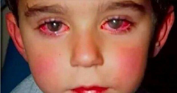 Niewinna zabawka pozbawiła dziecko najważniejszej rzeczy. Mały chłopiec stracił 75% wzroku w wyniku popularnego zakupu rodziców