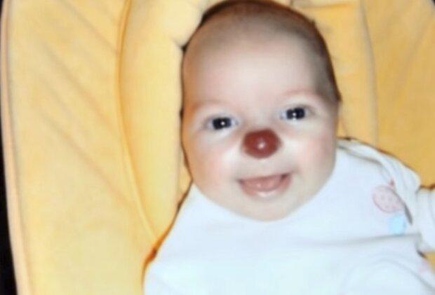 Dziewczynka z nosem klauna fot. YouTube