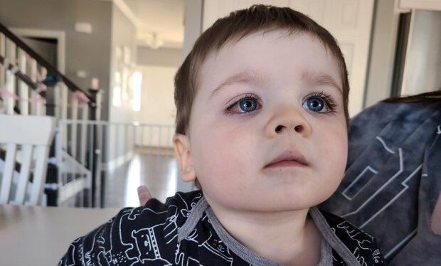 Rodzice małego chłopca ostrzegają innych. Niepozorna zabawa mogła skończyć się utratą wzroku. Rodzice powinni uważać