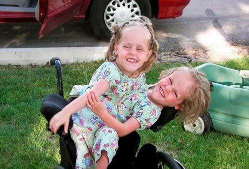 W wieku 4 lat bliźniaki syjamskie zostały podzielone. Teraz dziewczynki mają 18 lat. Jak wyglądają
