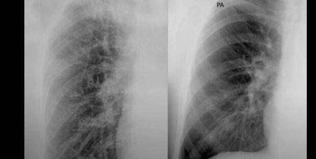 RTG płuc nie pozostawia złudzeń. Koronawirus pozostawia zmiany na narządach