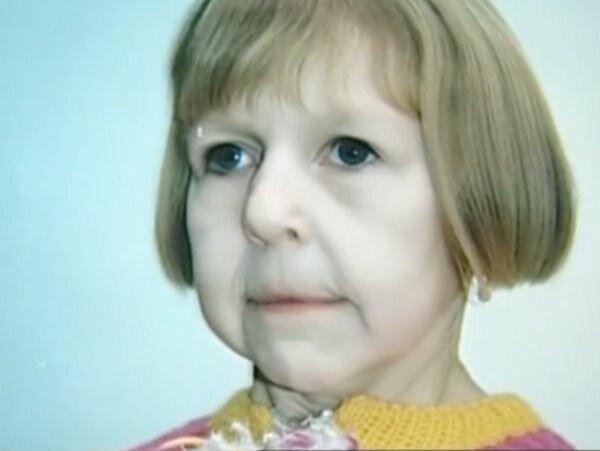 Kobieta cierpiąca na rzadką chorobę ułożyła sobie życie, źródło: Papilot