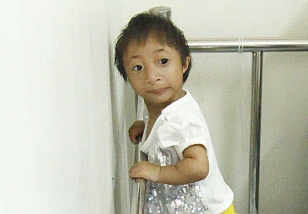 Jakie życie ma najmniejsza dziewczyna na świecie. Ile wzrostu ma ta śliczna trzylatka