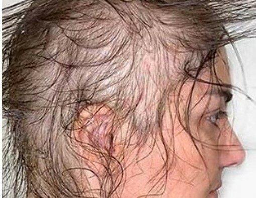Fryzjerka zrobiła elegancką fryzurę  niezwykle rzadkich włosów. Klientka wręcz oniemiała
