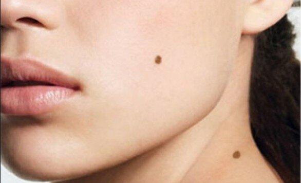 Lokalizacja pieprzyka na twarzy powie o sensie twojego życia