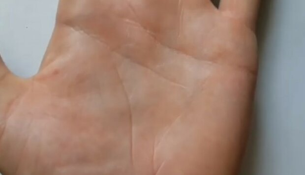 Jeśli masz wewnątrz dłoni tę żyłkę, to naprawdę masz szczęście. Oto dlaczego