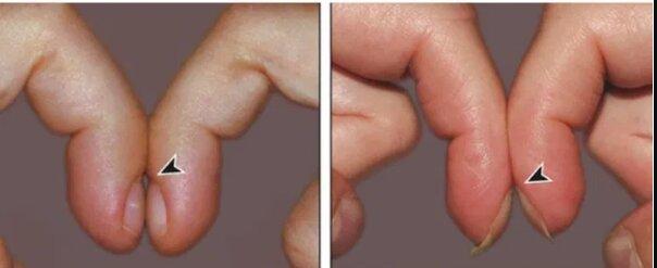 Zwróć uwagę na swoje paznokcie. Ich wygląd może świadczyć o rozwijającej się chorobie