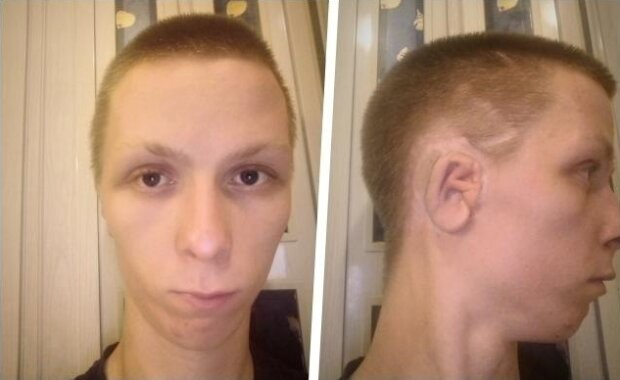 23-letni Kamil potrzebuje naszej pomocy. Operacja, jaką musi przejść nie jest refundowana. Każdy z nas może pomóc